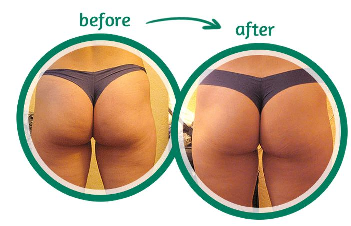 cellulite adipeuse