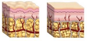 cellulite illustration