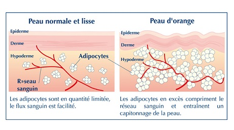comment ne plus avoir de cellulite naturellement