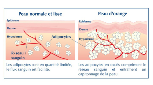 Percutafeine anti-cellulite : Mon Avis/Analyse - Ventre