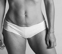 tonifier son ventre après grossesse